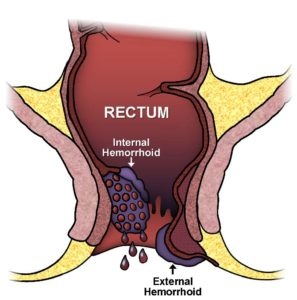 Illustration of Lumps In Postoperative Hemorrhoidal Wounds?