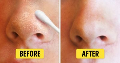 Illustration of How To Get Rid Of Whiteheads On The Nose?