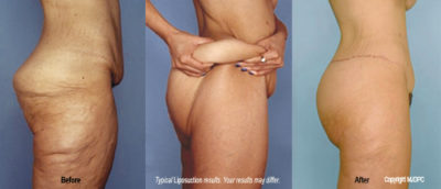 Illustration of How To Deal With Fat Accumulation On The Buttocks?