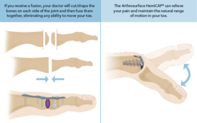 Illustration of How To Deal With Bones That Haven't Fused After 1 Year Of Surgery?