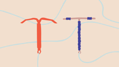Illustration of Postpartum Blood Doesn't Stop In IUD Users?