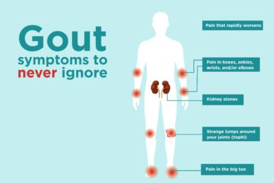 Illustration of Is Joint Pain Always A Sign Of Gout?
