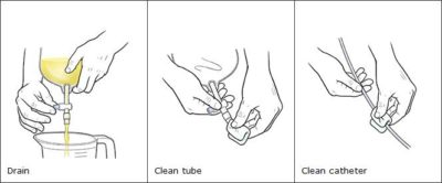 Illustration of Regarding The Bladder Cleaning Action?