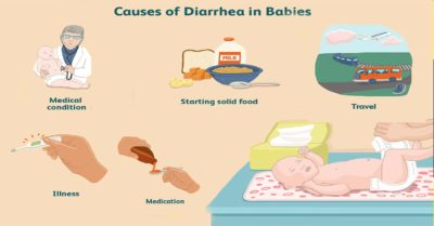 Illustration of Causes Of Diarrhea In Babies Aged 4 Months?