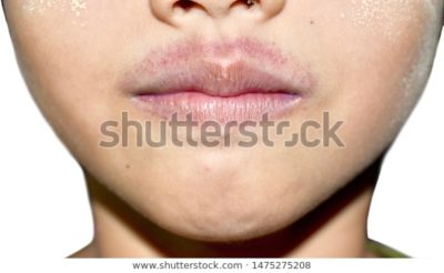 Illustration of Red Sores On The Upper Lip Of A Child 11 Months After The Flu?
