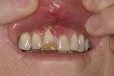 Illustration of Injury To The Area Around The Gums And Teeth After Falling In A 2 Year Old Child?