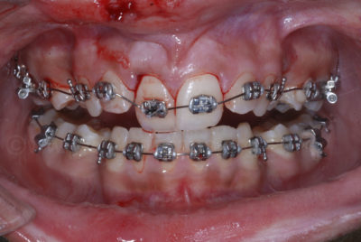 Illustration of Tooth Deformation After The Bracket On The Braces Is Removed?