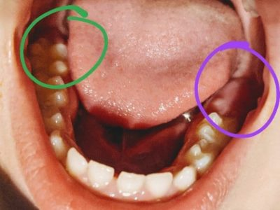 Illustration of The Growth Of Molar Teeth In A 14 Year Old Child?
