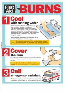 Illustration of First Aid For Burns?