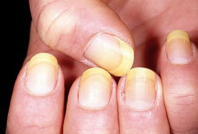 Illustration of Causes Of Dull Colored Nails?