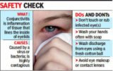 Flu Accompanied By Fever And Watery Eyes And Discharge?