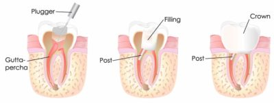 Illustration of The Cause Of The Root Of The Teeth Out Of The Gums In Children Aged 4 Years?