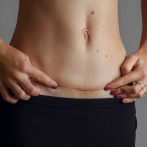 Illustration of Abdominal Skin Feels Painful To The Touch After Cesarean Section?