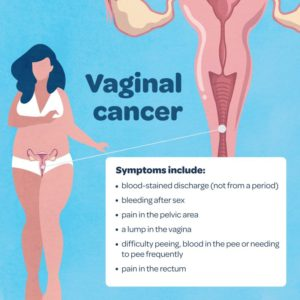 Illustration of The Cause Of Abnormal Vaginal Discharge And Lumps On The Cervix, But The Pap Smear Results Are Clean?