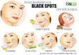 Solution For Black Spots On The Face Due To Using A Concocted Cream?