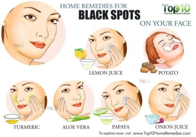Illustration of Solution For Black Spots On The Face Due To Using A Concocted Cream?
