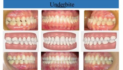 Illustration of Changes In The Shape Of The Upper Teeth After The Lower Teeth Are Removed?