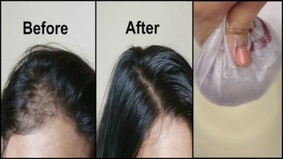 Illustration of What Is The Remedy For Thickening And Growing Sparse Hair?