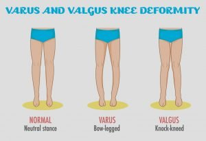 Illustration of Causes Of Crooked Legs In Children Aged 4 Months?