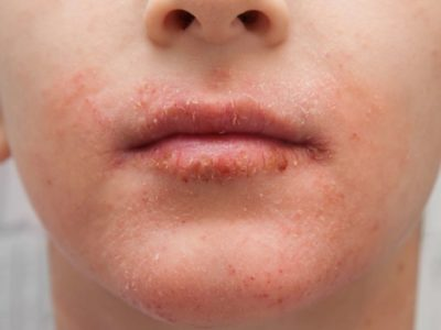 Illustration of Exfoliation Of The Skin Under The Lips Which Causes The Skin To Be Discolored?