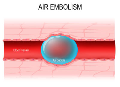 Illustration of The Possibility Of Embolism After Air Enters The IV Line?