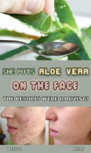 Illustration of Use Aloe Vera As A Mask Every Day?