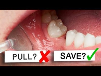 Illustration of Is It Dangerous To Pull Out 2 Teeth At Once?