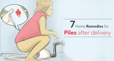 Illustration of How To Deal With Hemorrhoids That Arise After Normal Delivery?