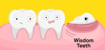 Illustration of Should The Imperfect Wisdom Teeth Be Removed?