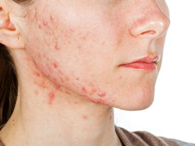 Illustration of How To Deal With Acne On The Face And Neck?