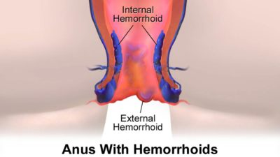 Illustration of The Relationship Between Hemorrhoids And Nausea And Dizziness After Eating?
