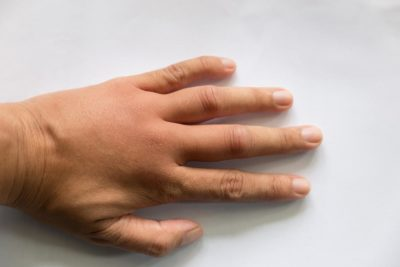 Illustration of The Left Hand Was Swollen And Painful When She Was 5 Months Pregnant?