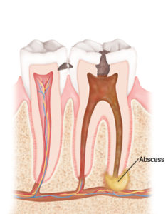Illustration of Toothache Pain Accompanied By A Lump In The Cavity?