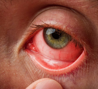 Illustration of The Eye Feels Sore After Using Eye Drops Containing Antibiotics?