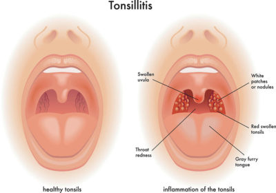 Illustration of Inflamed Tonsils, Accompanied By White Patches, Fever, Painful Swallowing And Yellowish Phlegm?