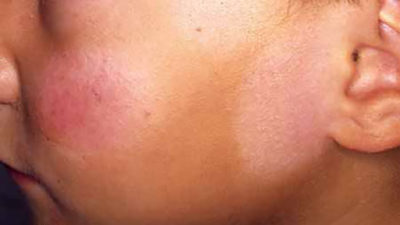Illustration of White Patches On Face But Not Itchy?