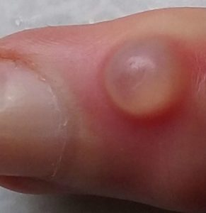 Illustration of A Small, Painful Yellow Lump Between The Index Finger And Thumb?