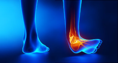 Illustration of The Right Leg Feels Sore From The Knee To The Ankle?