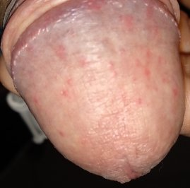 Illustration of Red Spots Appear On The Head Of The Penis And Feel Painful When Touched?