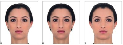 Illustration of Change In Head Shape, Asymmetrical Face After Accident And A Lump On The Thigh?