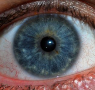 Illustration of The Appearance Of A White Membrane In The Iris Of The Eye?