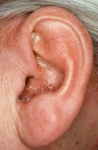 Illustration of Green Discharge In The Right Ear With A History Of Seizures And Infection In The Left Ear?