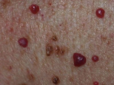 Illustration of Will The Cherry Angioma Get Bigger If You Touch It Often?