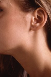 Illustration of Lump On The Left Cheek To The Neck Of A 2 Month Old Baby?