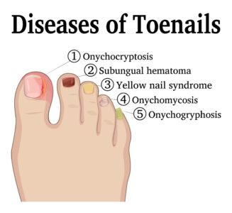 Illustration of Discoloration Of The Big Toe And Discharge From The Big Toe?