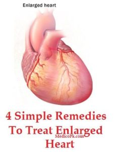 Illustration of Treatment For Enlarged Heart?
