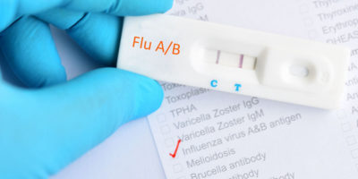 Illustration of The TPHA Test When You Have The Flu, Will It Affect The Lab Results?