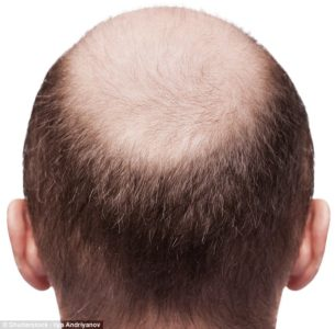 Illustration of How To Deal With Ring Bald Hair?