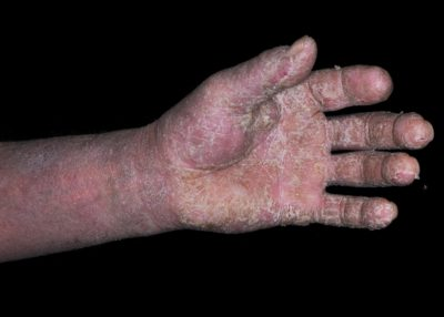 Illustration of How To Deal With The Skin Of The Hands Exposed To Phenol, Sore And Hot?