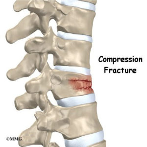 Illustration of How To Heal A Fracture In The Spine So That You Can Not Urinate And Defecate?